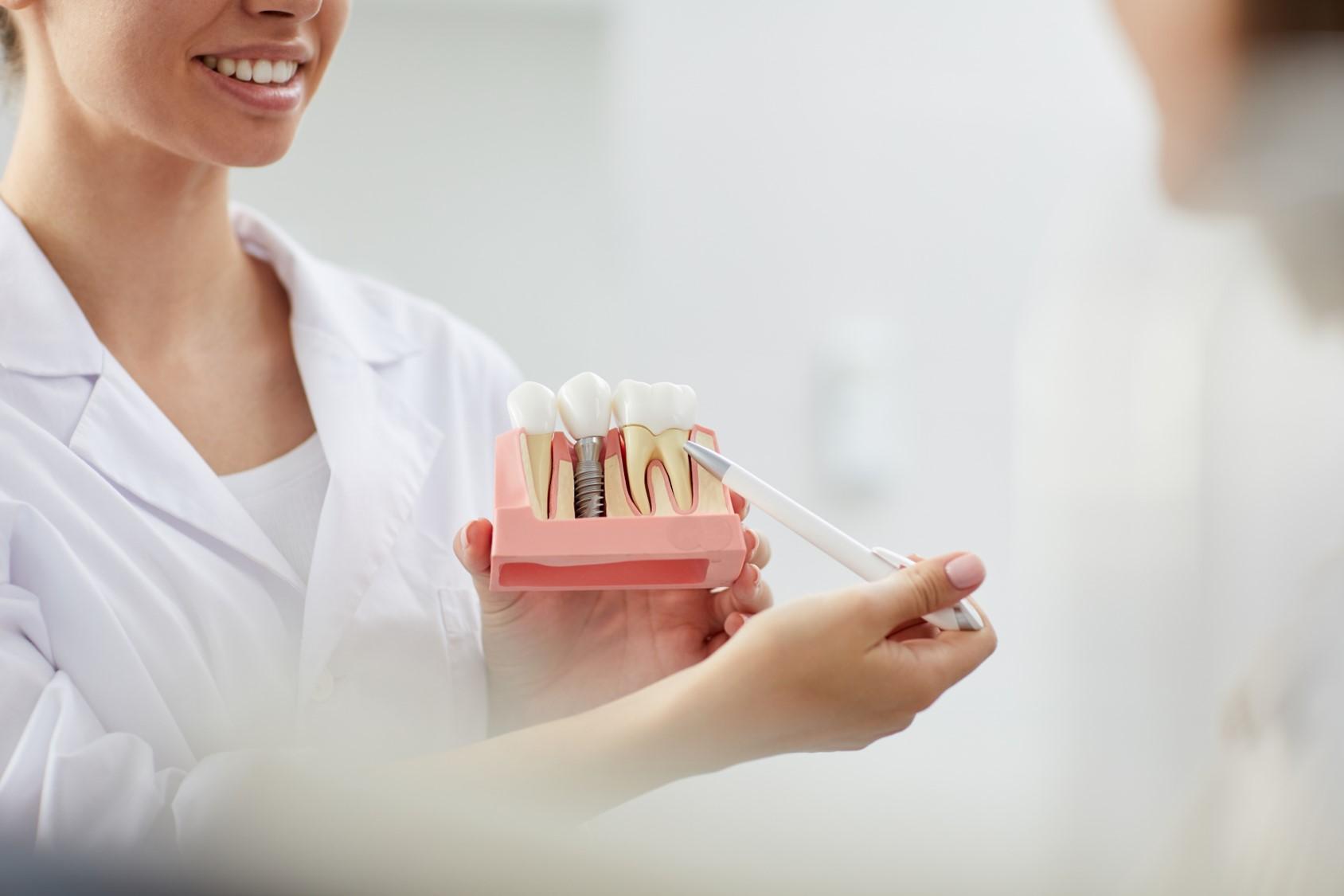 Όσα πρέπει να ξέρετε για τα οδοντικά εμφυτεύματα
